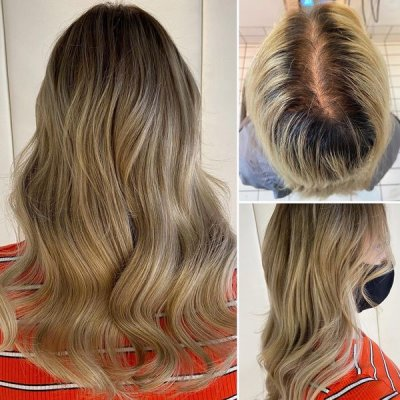 Before and after by Leyla at the klinik salon London